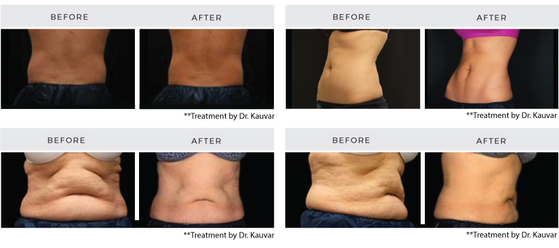 Coolsculpting - Before and After Images